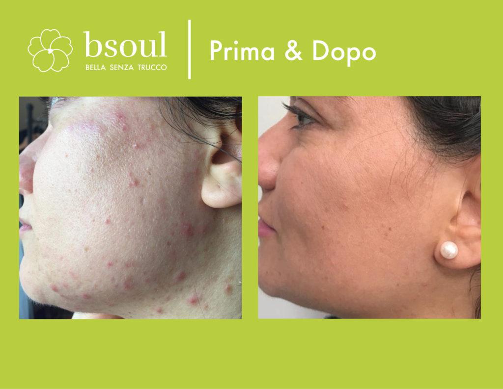 bsoul cosmetici naturali prima e dopo acne