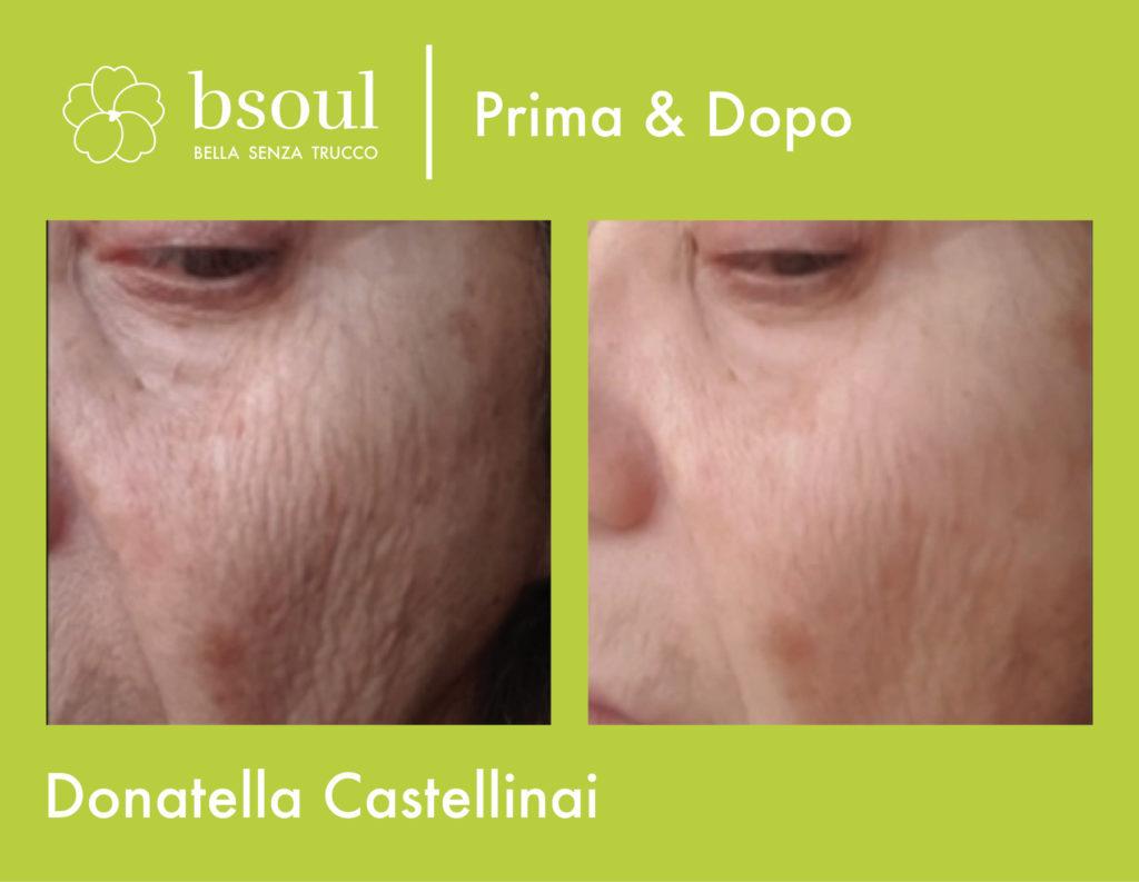 bsoul cosmetici naturali prima e dopo rughe