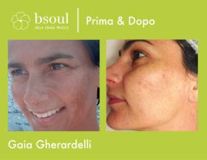 bsoul cosmetici naturali prima e dopo macchie della pelle