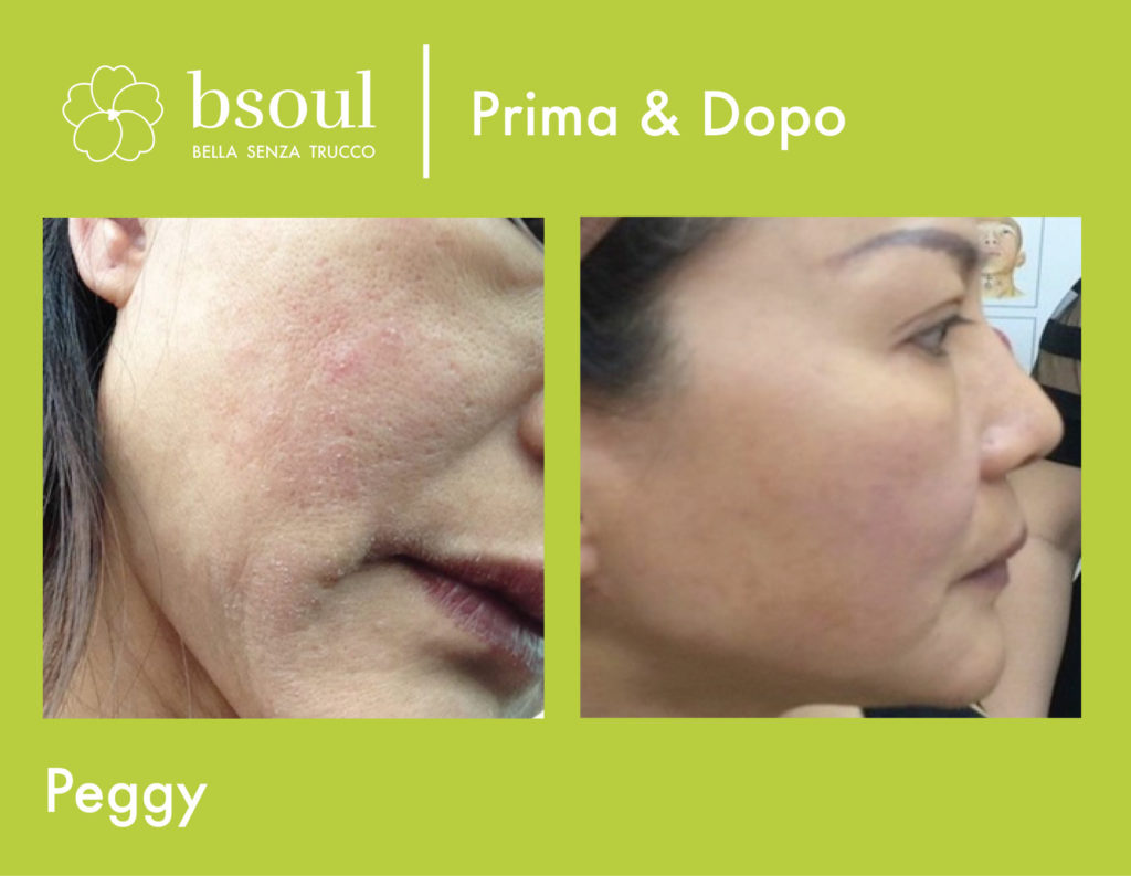 bsoul cosmetici naturali prima e dopo pori infiammazione