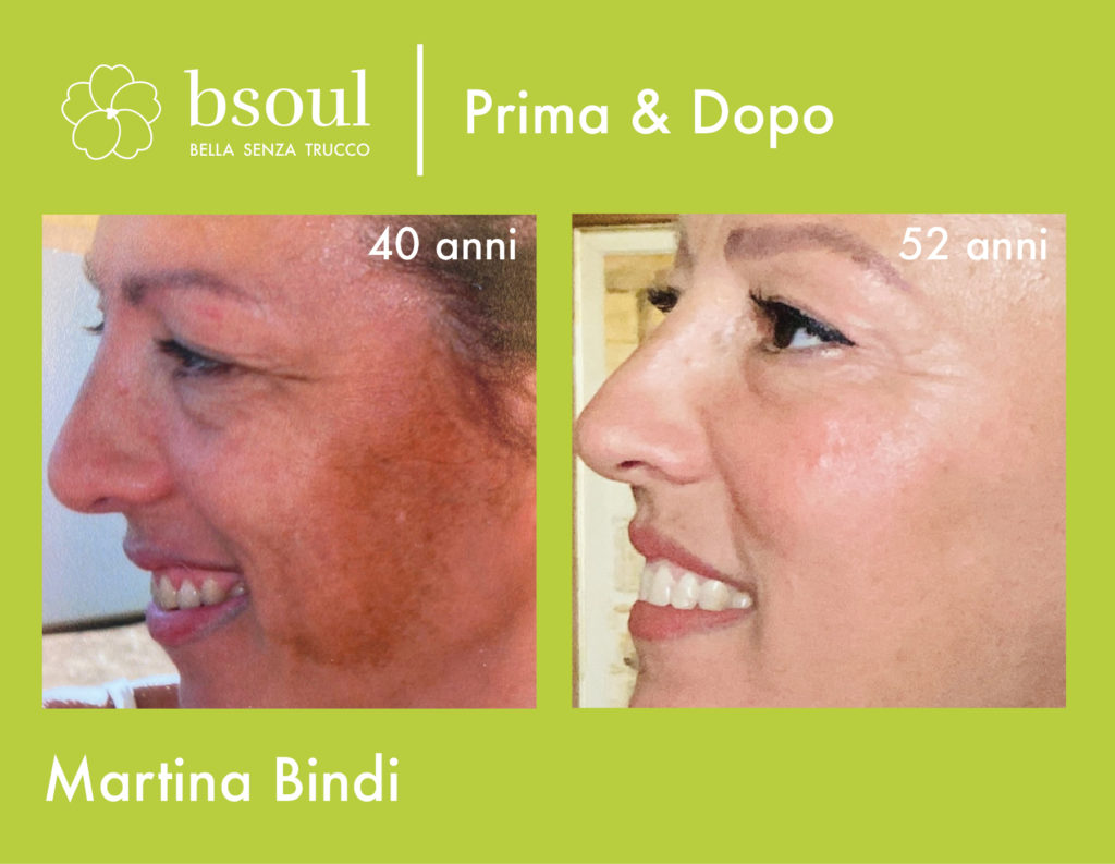 Martina Bindi bsoul prima e dopo